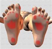 Plantillas a medida para dolor de pies.  No sufra de dolor de pies. Plantillas ortopédicas garantizadas, diseño por ordenador.